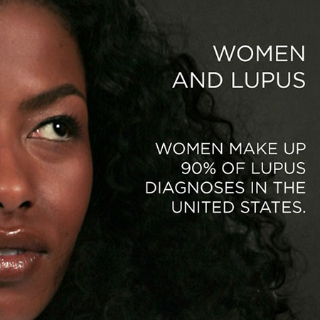 African American Women and Lupus